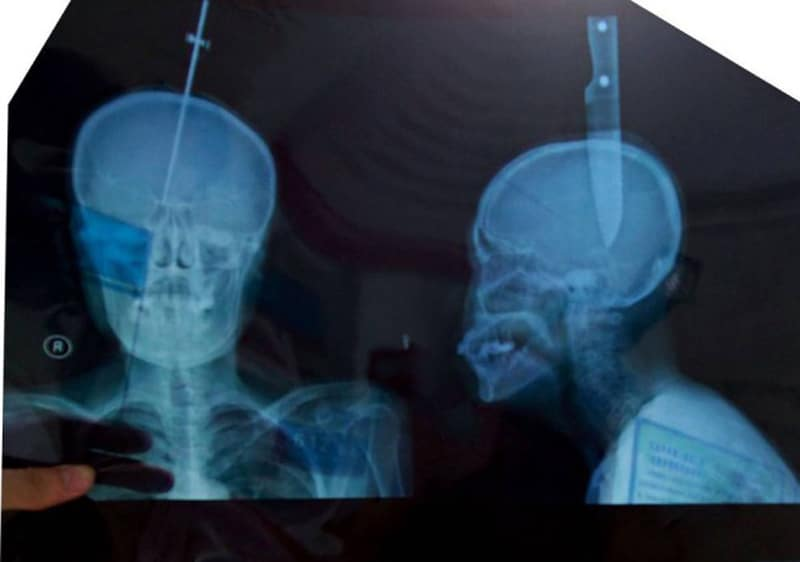 Consciente avec une lame de couteau de 11 cm dans le crâne